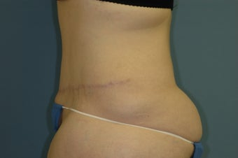 Abdominoplasty 531767