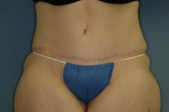 Abdominoplasty after 531767