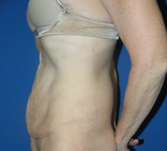 55-64 year old woman treated with Tummy Tuck before 3181953