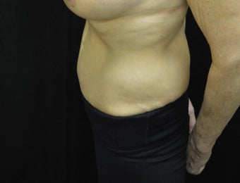 55-64 year old woman treated with Tummy Tuck after 3181953
