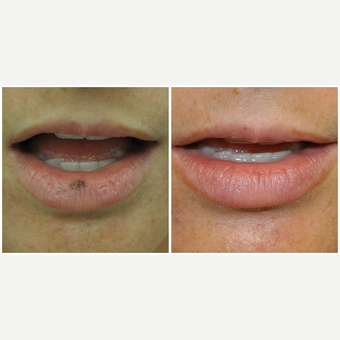 25-34 year old woman treated with Laser Treatment before 3590607