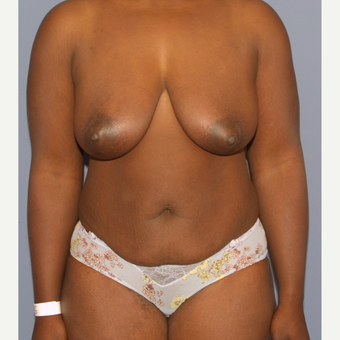 35-44 year old woman treated with Mommy Makeover before 3501316
