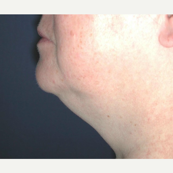 55-64 year old woman treated with Chin Liposuction before 3641489