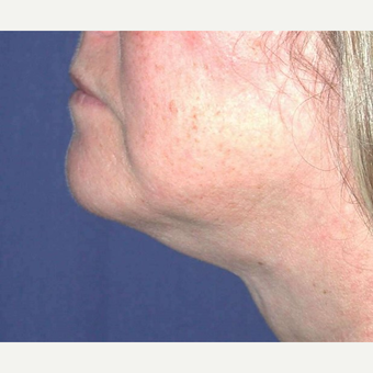55-64 year old woman treated with Chin Liposuction after 3641489