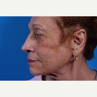 65-74 year old woman treated with Sculptra after 3625210