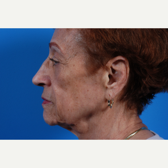 65-74 year old woman treated with Sculptra before 3625210