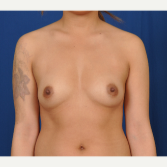 25-34 year old woman treated with Breast Augmentation before 3239937