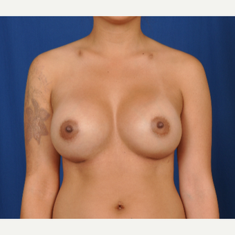 25-34 year old woman treated with Breast Augmentation after 3239937