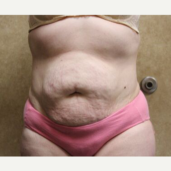 Tummy Tuck with Liposuction before 3454656