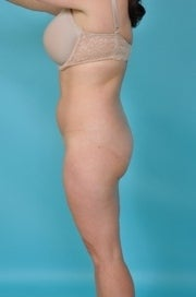 41 yo Female Liposuction of Abdomen, Flanks, and Medial Thighs, 6 Months Post Procedure 1441971