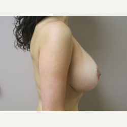 Breast Lift with Implants after 3367732