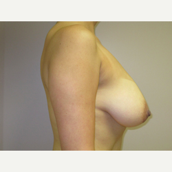 Breast Lift with Implants before 3367732