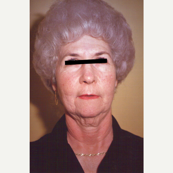 65-74 year old woman treated with Facelift before 3538995