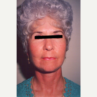 65-74 year old woman treated with Facelift after 3538995