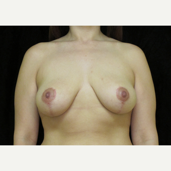 25-34 year old woman treated with Breast Lift after 3318747
