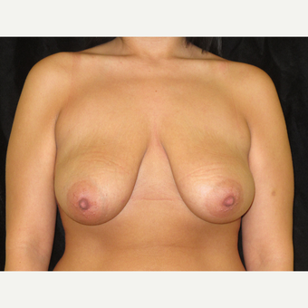 25-34 year old woman treated with Breast Lift before 3318747