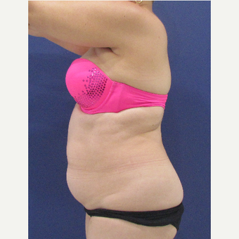 35-44 year old woman treated with Liposuction before 3663957
