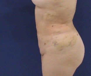 35-44 year old woman treated with Liposuction after 3663957