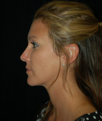 Nose Surgery - Rhinoplasty after 1253135