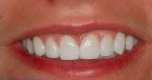 35-44 year old woman treated with Porcelain Veneers after 1691630