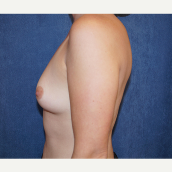 25-34 year old woman treated with Breast Augmentation before 3703623