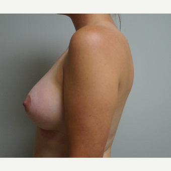 25-34 year old woman treated with Breast Augmentation after 3703623