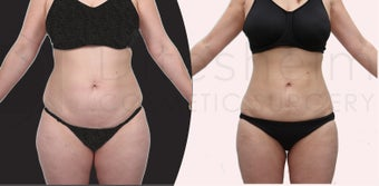 Water liposuciton, aquashape, body-jet liposuction.  Liposuction after two children before 1113804