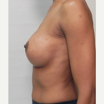 Breast Implants after 3241609