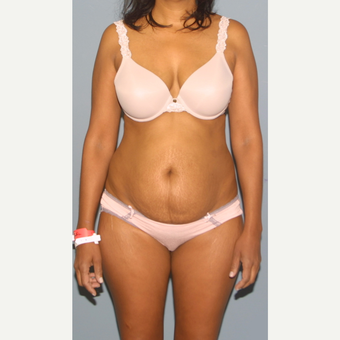 45-54 year old woman treated with Tummy Tuck before 3559282