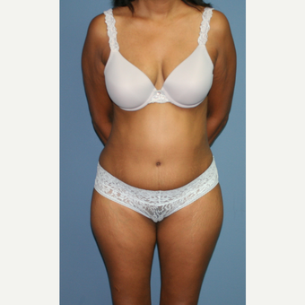 45-54 year old woman treated with Tummy Tuck after 3559282