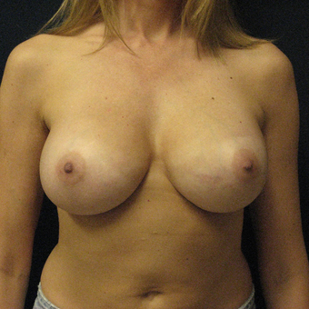 Silicone Breast Augmentation after 3448869