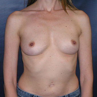 Silicone Breast Augmentation before 3448869