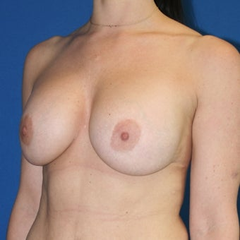 Patient goal of more upper pole fullness, less sagging achieved with breast lift and implants before 1362040