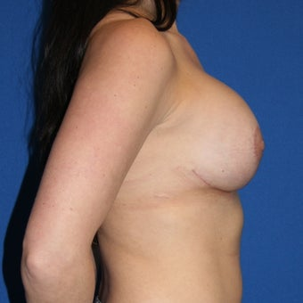 Patient goal of more upper pole fullness, less sagging achieved with breast lift and implants 1362040