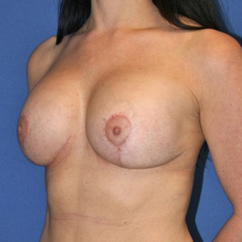 Patient goal of more upper pole fullness, less sagging achieved with breast lift and implants after 1362040