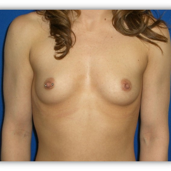 25-34 year old woman treated with Breast Augmentation before 3131716