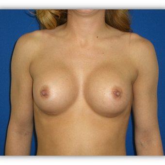 25-34 year old woman treated with Breast Augmentation after 3131716