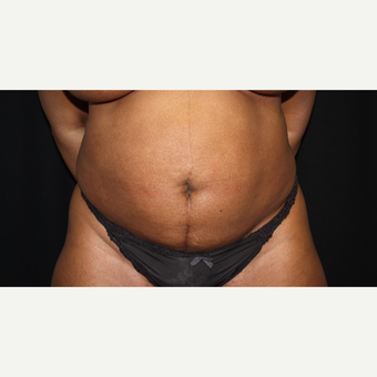 45-54 year old woman treated with Tummy Tuck before 3569357