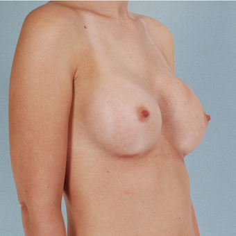 Breast Implants after 3033357