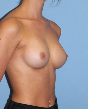 18-24 year old woman treated with Breast Implants 2441046