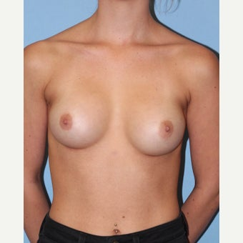 18-24 year old woman treated with Breast Implants after 2441046
