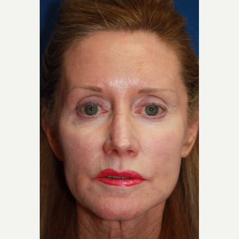 55-64 year old woman treated with Juvederm after 2685024