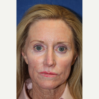 55-64 year old woman treated with Juvederm before 2685024