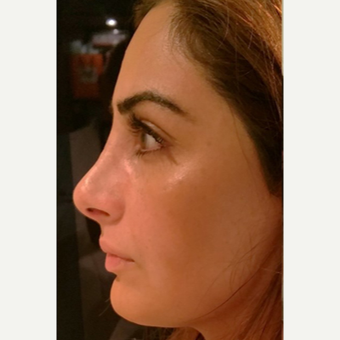 25-34 year old woman treated with Rhinoplasty after 3687097