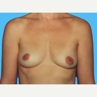Breast Augmentation before 3732599