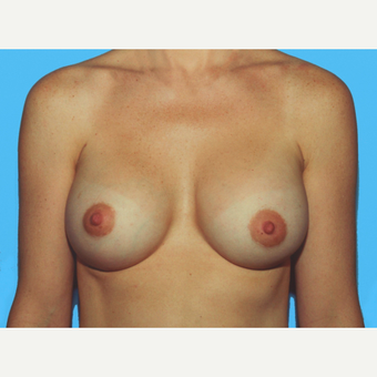 Breast Augmentation after 3732599