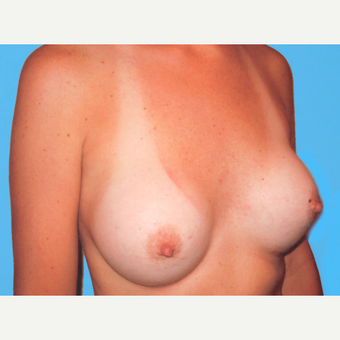 Breast Augmentation after 3732633