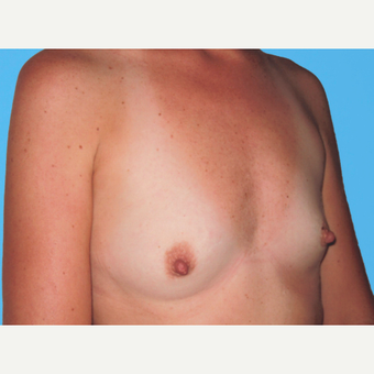 Breast Augmentation before 3732633