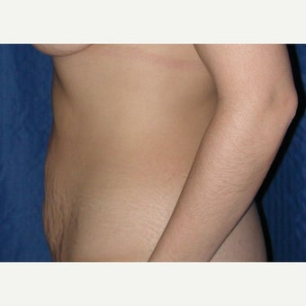35-44 year old woman treated with Tummy Tuck 1961718