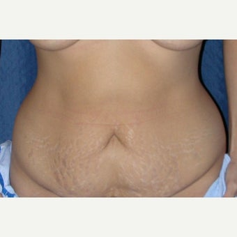 35-44 year old woman treated with Tummy Tuck before 1961718